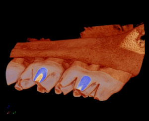 Figure 3 3D Model of a Micro-CT Scan of a Mandible