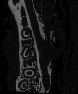 Figure 2 Micro-CT Cross Section