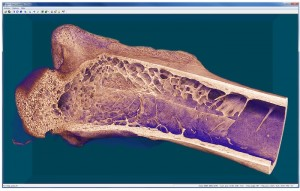 Femur micro-CT