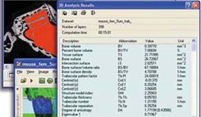 Micro-CT analysis software