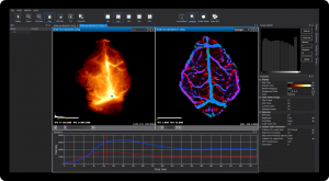 Kinetics Analysis of Time-lapse Image: Mouse Brain Blood Perfusion Analysis using ICG Real-Time Images