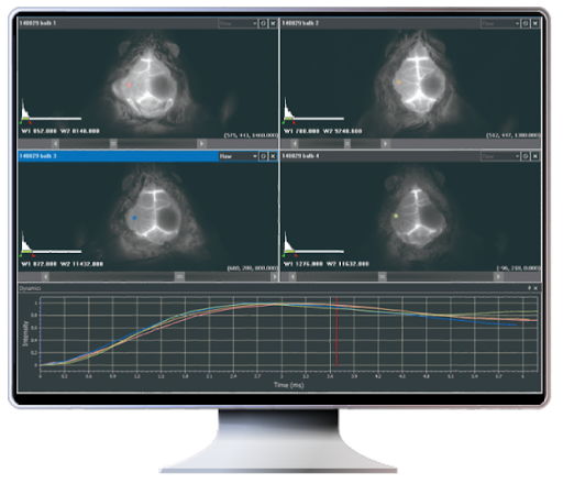 Analyze four images on one screen.
